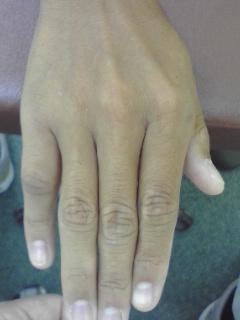 第5指骨折