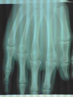 第5指骨折XP