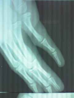 第5指骨折XP2