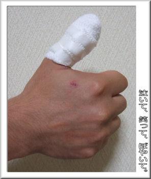 親指が~!