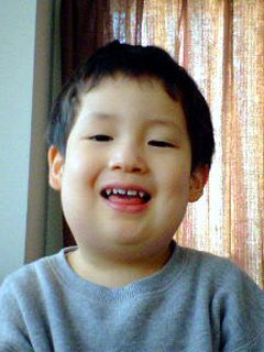おたふく風邪になったときの息子(2007年2月撮影)