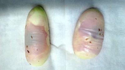 ハブの卵2