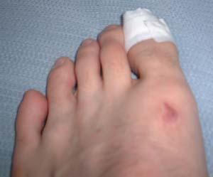 爪がはがれました