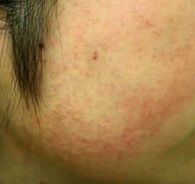 顔面毛包性紅斑黒皮症