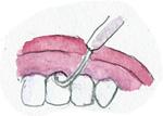 歯医者の話2
