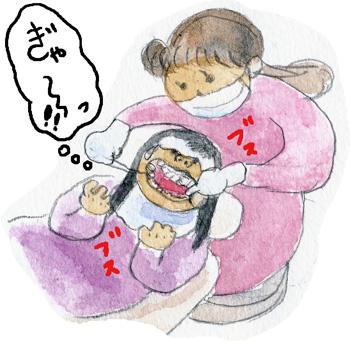 歯医者の話3