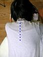 脊柱側湾症14