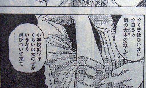 アイアムアヒーロー・英雄の室内・てっこ腕のケガ_512