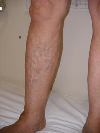 下肢静脈瘤写真